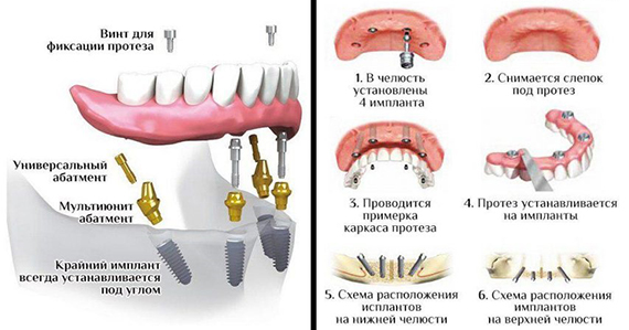 Этапы имплантации All-on-4